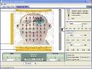 Screenshot of the simulation شبیه سازی ساده ای از ام آر آی